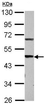 Western blot - Anti-STEAP3 antibody (ab126068)