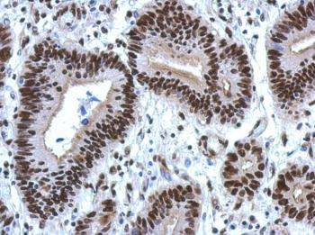 Immunohistochemistry (Formalin/PFA-fixed paraffin-embedded sections) - Anti-hnRNP M3-M4 antibody (ab126103)