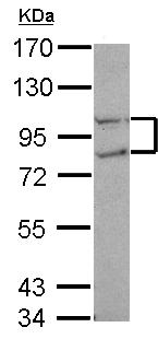 Western blot - Anti-FCP1 antibody (ab126107)