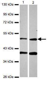 Western blot - Anti-PPOX antibody (ab126121)
