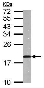 Western blot - Anti-proANP antibody (ab126149)