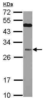 Western blot - Anti-QDPR antibody (ab126150)