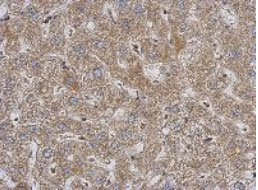 Immunohistochemistry (Formalin/PFA-fixed paraffin-embedded sections) - Anti-PABPC3 antibody (ab126178)