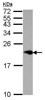 Western blot - Anti-Niemann Pick C2 antibody (ab126190)