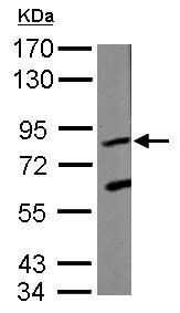Western blot - Anti-KRIT1 antibody (ab126191)