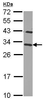 Western blot - Anti-CHMP2B antibody (ab126200)