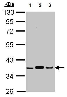Western blot - Anti-Pyruvate Dehydrogenase E1 beta subunit  antibody (ab126203)