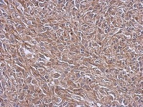 Immunohistochemistry (Formalin/PFA-fixed paraffin-embedded sections) - Anti-NDUFB4 antibody (ab126210)