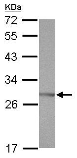 Western blot - Anti-SSX5 antibody (ab126225)