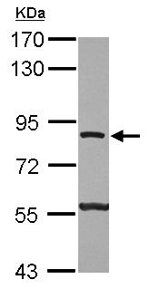 Western blot - Anti-ATP6V0A2 antibody (ab126227)