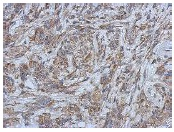 Immunohistochemistry (Formalin/PFA-fixed paraffin-embedded sections) - Anti-Filensin antibody (ab126235)