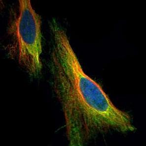 Immunocytochemistry/ Immunofluorescence - Anti-Apoptosis repressor with CARD antibody (ab126238)