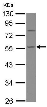 Western blot - Anti-Calsequestrin 1 antibody (ab126241)