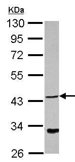 Western blot - Anti-NDRG4 antibody (ab126245)