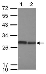 Western blot - Anti-Integrin beta 4 binding protein antibody (ab126249)