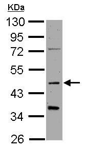 Western blot - Anti-Synaptotagmin 1 antibody (ab126253)