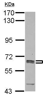 Western blot - Anti-Asparagine synthetase antibody (ab126254)