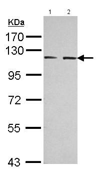 Western blot - Anti-Eph receptor A3 antibody (ab126261)