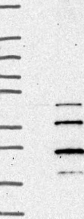 Western blot - Anti-TMEM208 antibody (ab126292)