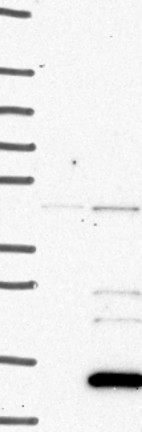 Western blot - Anti-NRN1L antibody (ab126303)