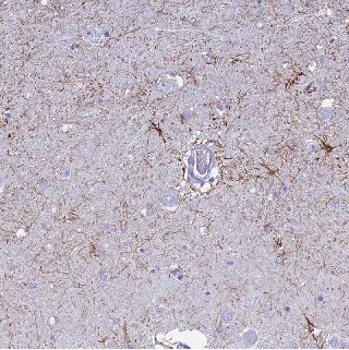 Immunohistochemistry (Formalin/PFA-fixed paraffin-embedded sections) - Anti-UNC80 antibody (ab126312)