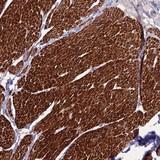 Immunohistochemistry (Formalin/PFA-fixed paraffin-embedded sections) - Anti-KIAA0664 antibody (ab126314)