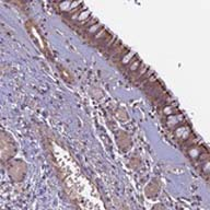 Immunohistochemistry (Formalin/PFA-fixed paraffin-embedded sections) - Anti-C6orf129 antibody (ab126337)
