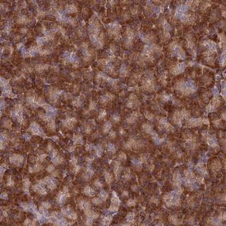 Immunohistochemistry (Formalin/PFA-fixed paraffin-embedded sections) - Anti-EXOC3L4 antibody (ab126345)