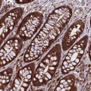 Immunohistochemistry (Formalin/PFA-fixed paraffin-embedded sections) - Anti-C16orf42 antibody (ab126365)