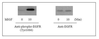 Western blot - EGFR (pY1086) + total EGFR ELISA Kit (ab126441)