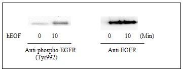 Western blot - EGFR (pY992) Human ELISA Kit (ab126442)