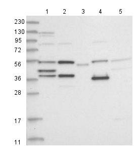 Western blot - Anti-ZCWPW2 antibody (ab126482)