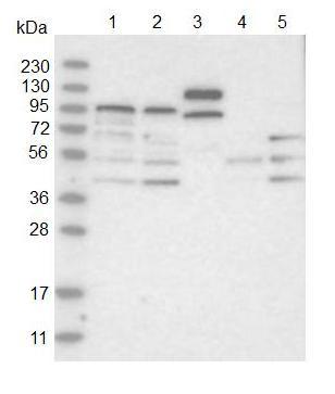 Western blot - Anti-ABCG8 antibody (ab126493)