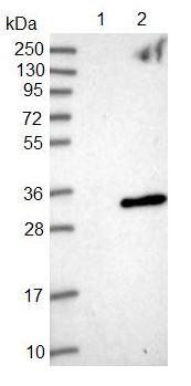 Western blot - Anti-ANKRD46 antibody (ab126495)