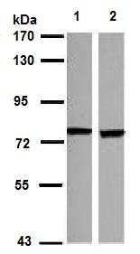 Western blot - Anti-SCNN1D antibody (ab126501)