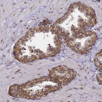 Immunohistochemistry (Formalin/PFA-fixed paraffin-embedded sections) - Anti-CCDC9 antibody (ab126515)