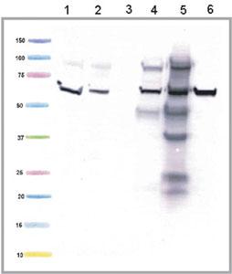 Western blot - Anti-ETFDH antibody [3H2BG1] (ab126576)