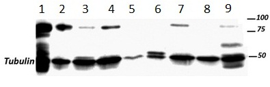 Western blot - Anti-SUZ12 antibody [SUZ220A] (ab126577)
