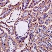 Immunohistochemistry (Formalin/PFA-fixed paraffin-embedded sections) - Anti-PEAMT antibody [EPR6919] (ab126610)