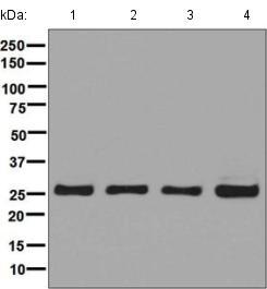 Western blot - Anti-UCHL3 antibody [EP5331] (ab126621)