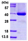 SDS-PAGE - BRDG 1 protein (His tag) (ab126657)