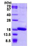 SDS-PAGE - FABP12 protein (His tag) (ab126660)