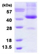SDS-PAGE - ADH6 protein (His tag) (ab126661)