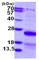 SDS-PAGE - CSRP2 protein (His tag) (ab126663)