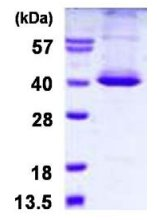 SDS-PAGE - STK16 protein (His tag) (ab126668)