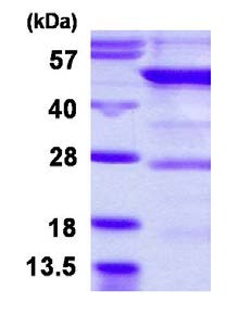 SDS-PAGE - YARS2 protein (His tag) (ab126680)