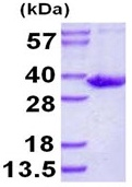 SDS-PAGE - SULT1B1 protein (ab126691)