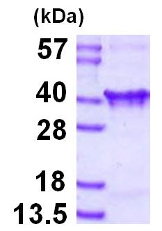 SDS-PAGE - TIM 1 protein (His tag) (ab126693)