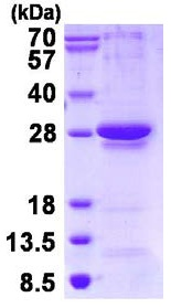 SDS-PAGE - RGS1 protein (His tag) (ab126697)