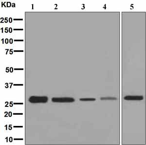 Western blot - Anti-GCLM antibody [EPR6667] (ab126704)